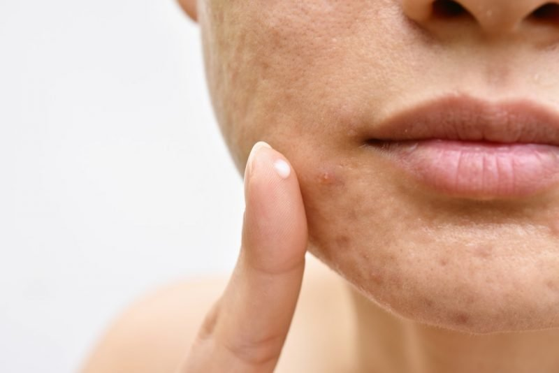 close up photo of woman with dull skin - acne scars and acne spots