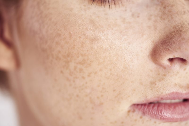 Close up of woman's face with dull skin and freckles